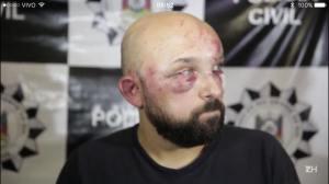Braulio Escobar, motyorista do app Uber, vítima de ataque de taxistas contra o UBER